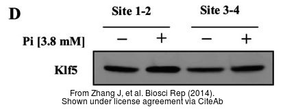 The WB analysis of KLF5 antibody was published by Zhang J and colleagues in the journal Biosci Rep in 2014.PMID: 25205373
