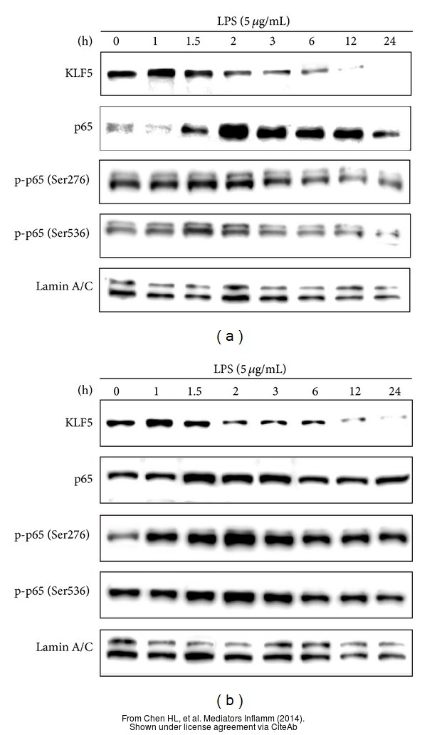 The WB analysis of KLF5 antibody was published by Chen HL and colleagues in the journal Mediators Inflamm in 2014.PMID: 25197166