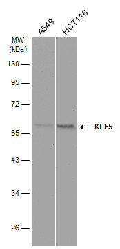 Various whole cell extracts (30 μg) were separated by 10% SDS-PAGE, and the membrane was blotted with KLF5 antibody (GRP485) diluted at 1:1000. The HRP-conjugated anti-rabbit IgG antibody  was used to detect the primary antibody.