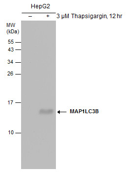 Untreated (–) and treated (+) HepG2 whole cell extracts (30 ?g) were separated by 15% SDS-PAGE, and the membrane was blotted with LC3B antibody [GT3612] (GRP533) diluted at 1:500.