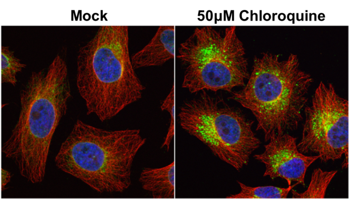 LC3B antibody detects LC3B protein at autophagosome by immunofluorescent analysis. Samples: HeLa cells mock (left) and treated with 50?M Chloroquine for 24 hr (right) were fixed in 4% paraformaldehyde at RT for 15 min.Green: LC3B protein stained by LC3B a