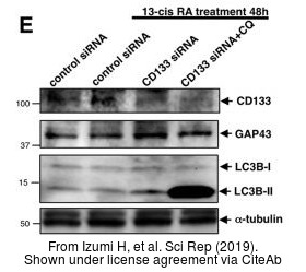 The WB analysis of LC3B antibody was published by Izumi H and colleagues in the journal Sci Rep in 2019.PMID: 30783186