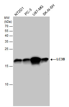 LC3B antibody detects LC3B protein by western blot analysis. Various whole cell extracts (30 μg) were separated by 15% SDS-PAGE, and the membrane was blotted with LC3B antibody (GRP521) diluted at a dilution of 1:1000. The HRP-conjugated anti-rabbit Ig