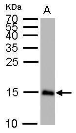 LC3B antibody detects MAP1LC3B protein by western blot analysis.A. 50 μg mouse brain lysate/extract15% SDS-PAGELC3B antibody (GRP521) dilution: 1:1000 The HRP-conjugated anti-rabbit IgG antibody  was used to detect the primary antibody.