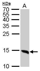 LC3B antibody detects MAP1LC3B protein by western blot analysis.A. 50 μg Rat brain lysate/extract15% SDS-PAGELC3B antibody (GRP521) dilution: 1:1000 The HRP-conjugated anti-rabbit IgG antibody  was used to detect the primary antibody.