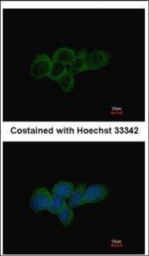 Immunofluorescence analysis of methanol-fixed A431, using LDHA(GRP473) antibody at 1:500 dilution.