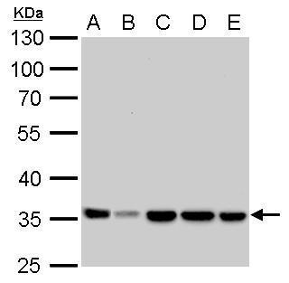 LDHA antibody detects LDHA protein by western blot analysis.A. 30 μg Neuro2A whole cell lysate/extract B. 30 μg C8D30 whole cell lysate/extract C. 30 μg NIH-3T3 whole cell lysate/extract D. 30 μg Raw264.7 whole cell lysate/extract E. 30 μg