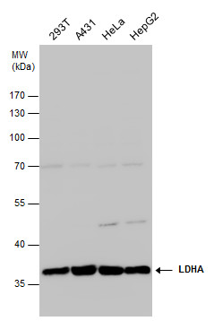 LDHA antibody detects LDHA protein by western blot analysis. Various whole cell extracts (30 μg) were separated by 10% SDS-PAGE, and the membrane was blotted with LDHA antibody (GRP473) diluted at 1:1000. The HRP-conjugated anti-rabbit IgG antibody  wa