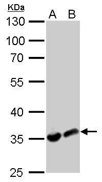 LDHA antibody detects LDHA protein by western blot analysis.A. 30 μg PC-12 whole cell lysate/extractB. 30 μg Rat2 whole cell lysate/extract10% SDS-PAGELDHA antibody (GRP473) dilution: 1:1000 The HRP-conjugated anti-rabbit IgG antibody  was used to d