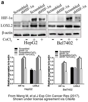 The WB analysis of LOXL2 antibody was published by Wang M and colleagues in the journal J Exp Clin Cancer Res in 2017 .
