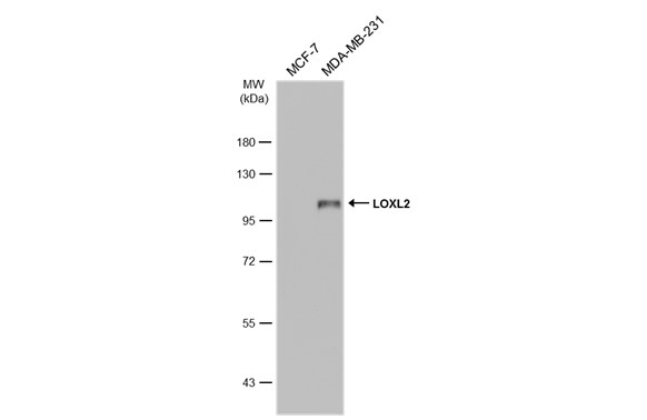 Various whole cell extracts (30 ?g) were separated by 7.5% SDS-PAGE, and the membrane was blotted with LOXL2 antibody (GRP488) diluted at 1:5000. The HRP-conjugated anti-rabbit IgG antibody  was used to detect the primary antibody.
