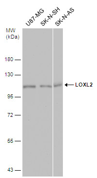 Various whole cell extracts (30 μg) were separated by 7.5% SDS-PAGE, and the membrane was blotted with LOXL2 antibody (GRP488) diluted at 1:1000. The HRP-conjugated anti-rabbit IgG antibody  was used to detect the primary antibody.