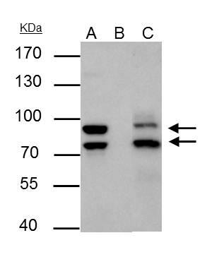 MDM2 antibody immunoprecipitates MDM2 protein in IP experiments.IP samples: Jurkat whole cell extractA. 30 ?g Jurkat cell whole cell extractB. Control with 4 ?g of preimmune Rabbit IgGC. Immunoprecipitation of MDM2 protein by 4 ?g MDM2 antibody (GRP461)7.