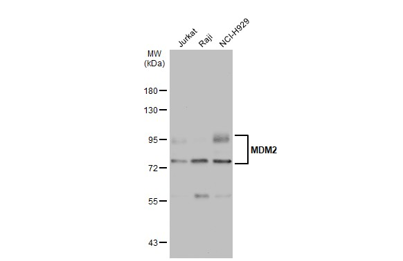 Various whole cell extracts (30 μg) were separated by 7.5% SDS-PAGE, and the membrane was blotted with MDM2 antibody (GRP461) diluted at 1:1000. The HRP-conjugated anti-rabbit IgG antibody  was used to detect the primary antibody.