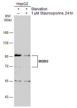 Untreated (–) and treated (+) HepG2 whole cell extracts (30 μg) were separated by 7.5% SDS-PAGE, and the membrane was blotted with MDM2 antibody (GRP461) diluted at 1:3000. The HRP-conjugated anti-rabbit IgG antibody  was used to detect the primary a