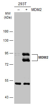 Non-transfected (–) and transfected (+) 293T whole cell extracts (30 μg) were separated by 7.5% SDS-PAGE, and the membrane was blotted with MDM2 antibody (GRP461) diluted at 1:2000. The HRP-conjugated anti-rabbit IgG antibody  was used to detect the
