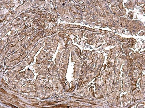 MMP1 antibody detects MMP1 protein at secreted on mouse prostate by immunohistochemical analysis. Sample: Paraffin-embedded mouse prostate. MMP1 antibody (GRP462) dilution: 1:500.