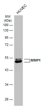 Whole cell extract (30 μg) was separated by 10% SDS-PAGE, and the membrane was blotted with MMP1 antibody (GRP462) diluted at 1:2500. The HRP-conjugated anti-rabbit IgG antibody  was used to detect the primary antibody.