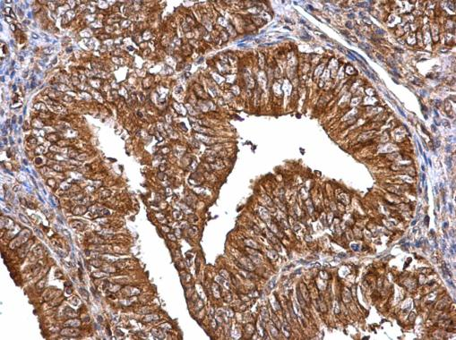 MMP2 antibody detects MMP2 protein at cytosol on human endometrial carcinoma by immunohistochemical analysis. Sample: Paraffin-embedded human endometrial carcinoma. MMP2 antibody (GRP486) dilution: 1:500.