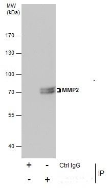 Immunoprecipitation of MMP2 protein from U87-MG whole cell extracts using 5 ?g of MMP2 antibody (GRP486).Western blot analysis was performed using MMP2 antibody (GRP486).EasyBlot anti-Rabbit IgG  was used as a secondary reagent.