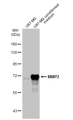 U87-MG whole cell extract and conditioned medium (30 μg) were separated by 7.5% SDS-PAGE, and the membrane was blotted with MMP2 antibody (GRP486) diluted at 1:6000. The HRP-conjugated anti-rabbit IgG antibody  was used to detect the primary antibody.