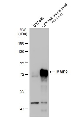 U87-MG whole cell extract and conditioned medium (30 μg) were separated by 7.5% SDS-PAGE, and the membrane was blotted with MMP2 antibody (GRP486) diluted at 1:1000. The HRP-conjugated anti-rabbit IgG antibody  was used to detect the primary antibody.