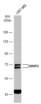 Whole cell extract (30 μg) was separated by 7.5% SDS-PAGE, and the membrane was blotted with MMP2 antibody (GRP486) diluted at 1:1000. The HRP-conjugated anti-rabbit IgG antibody  was used to detect the primary antibody.