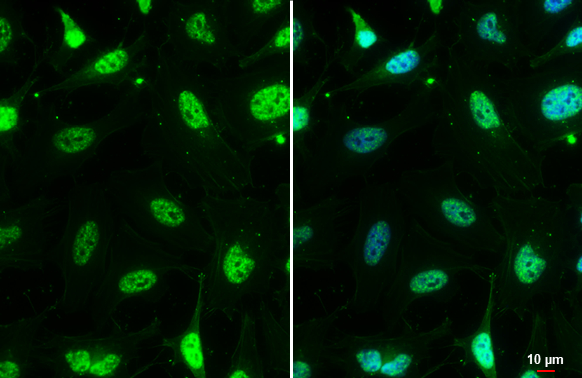 Mre11 antibody [12D7] detects Mre11 protein at nucleus by immunofluorescent analysis.Sample: HeLa cells were fixed in 4% paraformaldehyde at RT for 15 min.Green: Mre11 stained by Mre11 antibody [12D7] (GRP540) diluted at 1:200.Blue: Hoechst 33342 staining