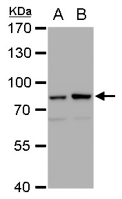 Mre11 antibody [12D7] detects Mre11 protein by western blot analysis.A. 30 μg 293T whole cell extract B. 30 μg whole cell extract of human Mre11-transfected 293T cells7.5% SDS-PAGEMre11 antibody [12D7] (GRP540) dilution: 1:1000The HRP-conjugated ant