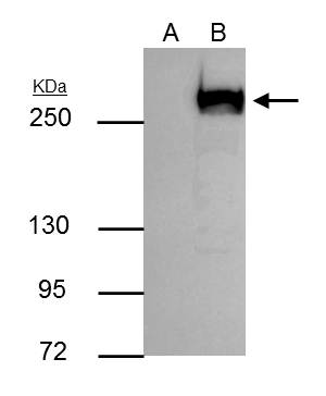 mTOR antibody immunoprecipitates mTOR protein in IP experiments. IP Sample: 293T whole cell lysate/extract A : Control with 3 ?g of pre-immune rabbit IgG B : Immunoprecipitation of mTOR by 3 ?g of mTOR antibody (GRP476) 5% SDS-PAGE The immunoprecipitated