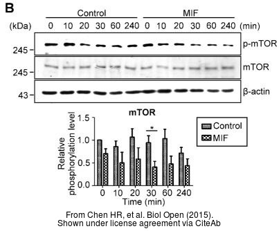 The WB analysis of mTOR antibody [C3], C-term was published by Chen HR and colleagues in the journal Biol Open in 2015.PMID: 25617421