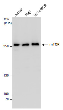 mTOR antibody detects mTOR protein by Western blot analysis. Various whole cell extracts (30 ?g) were separated by 5% SDS-PAGE, and the membrane was blotted with mTOR antibody (GRP476) diluted at a dilution of 1:1000.