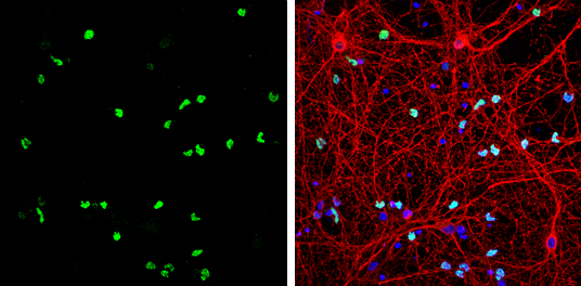 OLIG2 antibody detects OLIG2 protein by immunofluorescent analysis.Sample: DIV9 rat E18 primary cortical neurons and glia cells were fixed in 4% paraformaldehyde at RT for 15 min.Green: OLIG2 protein stained by OLIG2 antibody (GRP615) diluted at 1:500.Red