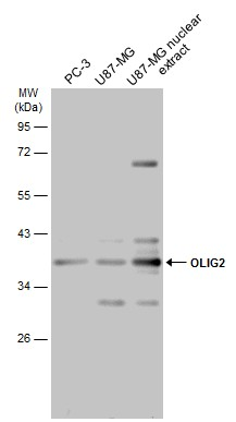 Various cell extracts  (30 μg) were separated by 12% SDS-PAGE, and the membrane was blotted with OLIG2 antibody (GRP615) diluted at 1:1000. The HRP-conjugated anti-rabbit IgG antibody  was used to detect the primary antibody.