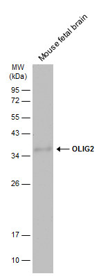Mouse tissue extract (50 μg) was separated by 5% SDS-PAGE, and the membrane was blotted with OLIG2 antibody (GRP615) diluted at 1:500. The HRP-conjugated anti-rabbit IgG antibody  was used to detect the primary antibody.