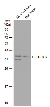 Various tissue extracts (50 μg) were separated by 12% SDS-PAGE, and the membrane was blotted with OLIG2 antibody (GRP615) diluted at 1:1000. The HRP-conjugated anti-rabbit IgG antibody  was used to detect the primary antibody.