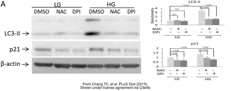 The WB analysis of p21 Cip1 antibody [GT1032] was published by Chang TC and colleagues in the journal PLoS One in 2015.PMID: 25961745