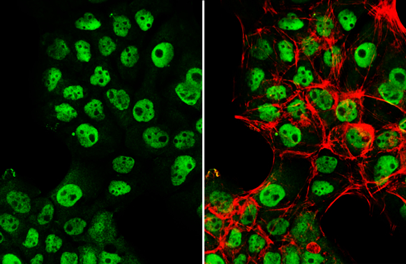 p53 antibody detects p53 protein at nucleus by immunofluorescent analysis.Sample: A431 cells were fixed in 4% paraformaldehyde at RT for 15 min.Green: p53 stained by p53 antibody (GRP482) diluted at 1:500.Red: phalloidin, a cytoskeleton marker, diluted at
