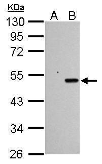 Sample (30 μg of whole cell lysate)  A: HCT116 cells with mock treatment for 24 hr  B: HCT116 cells with 30 μM cisplatin treatment for 24 hr  10% SDS PAGE  GRP482 diluted at 1:1000 The HRP-conjugated anti-rabbit IgG antibody  was used to detect the