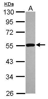 Sample (30 μg of whole cell lysate)  A: A431 (GRP482)  10% SDS PAGE  diluted at 1:1000 The HRP-conjugated anti-rabbit IgG antibody  was used to detect the primary antibody.
