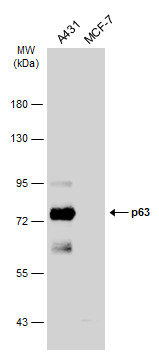 Various whole cell extracts (30 μg) were separated by 7.5% SDS-PAGE, and the membrane was blotted with p63 antibody [N2C1], Internal (GRP478) diluted at 1:1000. The HRP-conjugated anti-rabbit IgG antibody  was used to detect the primary antibody.