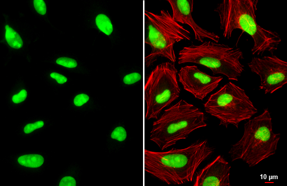PARP antibody [N2C1], Internal detects PARP protein at nucleus by immunofluorescent analysis.Sample: HeLa cells were fixed in 4% paraformaldehyde at RT for 15 min.Green: PARP stained by PARP antibody [N2C1], Internal (GRP506) diluted at 1:500.Red: phalloi