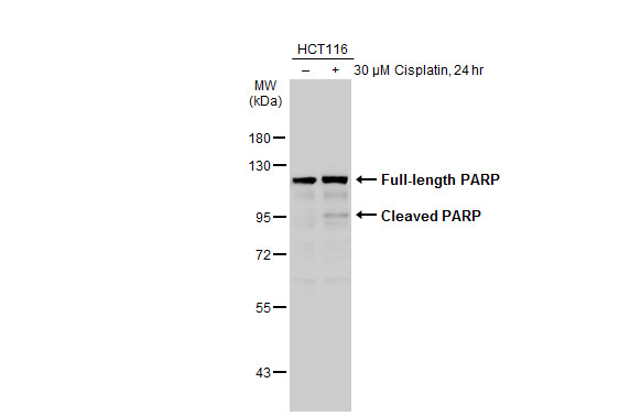 Untreated (–) and treated (+) HCT116 whole cell extracts (30 μg) were separated by 7.5% SDS-PAGE, and the membrane was blotted with PARP antibody [N2C1], Internal (GRP506) diluted at 1:1000. The HRP-conjugated anti-rabbit IgG antibody  was used to de