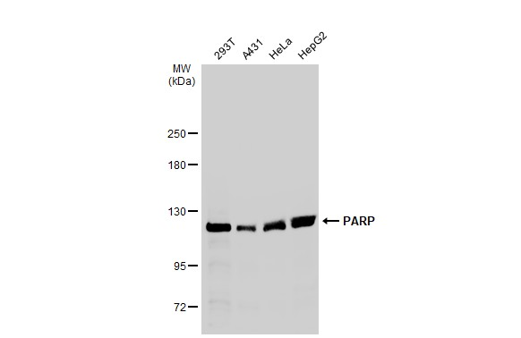 Various whole cell extracts (30 μg) were separated by 5% SDS-PAGE, and the membrane was blotted with PARP antibody [N2C1], Internal (GRP506) diluted at 1:1000. The HRP-conjugated anti-rabbit IgG antibody  was used to detect the primary antibody.