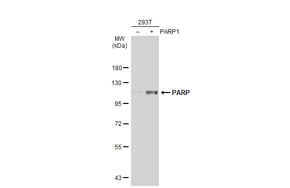 Non-transfected (–) and transfected (+) 293T whole cell extracts (30 μg) were separated by 7.5% SDS-PAGE, and the membrane was blotted with PARP antibody [N2C1], Internal (GRP506) diluted at 1:50000. The HRP-conjugated anti-rabbit IgG antibody  was u