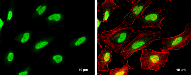 PARP antibody detects PARP protein at nucleus by immunofluorescent analysis.Sample: HeLa cells were fixed in 4% paraformaldehyde at RT for 15 min.Green: PARP protein stained by PARP antibody (GRP464) diluted at 1:500.Red: Phalloidin, a cytoskeleton marker