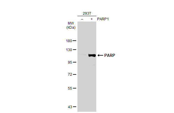 Non-transfected (–) and transfected (+) 293T whole cell extracts (30 μg) were separated by 7.5% SDS-PAGE, and the membrane was blotted with PARP antibody (GRP464) diluted at 1:50000. The HRP-conjugated anti-rabbit IgG antibody  was used to detect the