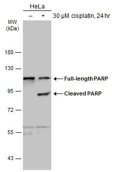 Untreated (–) and treated (+) HeLa whole cell extracts (30 μg) were separated by 7.5% SDS-PAGE, and the membrane was blotted with PARP antibody (GRP464) diluted at 1:2000. The HRP-conjugated anti-rabbit IgG antibody  was used to detect the primary an