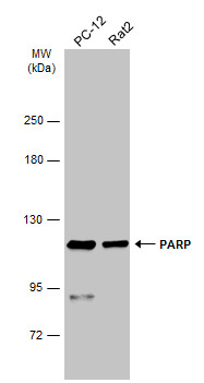 Various whole cell extracts (30 μg) were separated by 5% SDS-PAGE, and the membrane was blotted with PARP antibody (GRP464) diluted at 1:1000. The HRP-conjugated anti-rabbit IgG antibody  was used to detect the primary antibody.