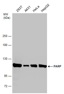 Various whole cell extracts (30 μg) were separated by 5% SDS-PAGE, and the membrane was blotted with PARP antibody (GRP464) diluted at 1:2000.